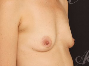 Før brystforstørrelse (BFO)