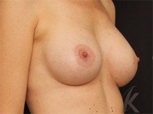 Efter brystforstørrelse