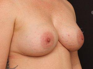 Efter brystforstørrende operation