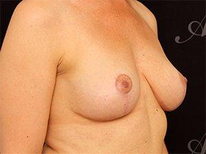 Efter brystløft operation