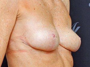 Efter-brystløft-kapselfj-BFO-udskift