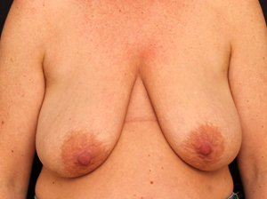 før brystløft