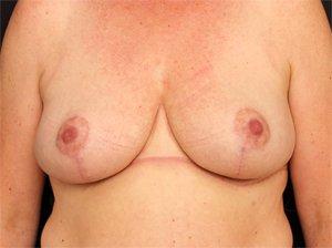 Efter brystløft
