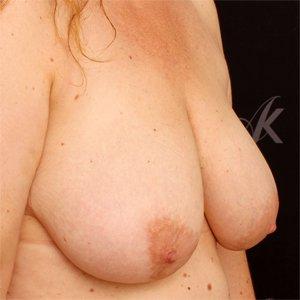 før brystreduktion
