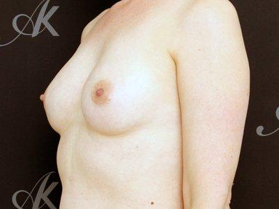 Før brystforstørrelse med eget fedt