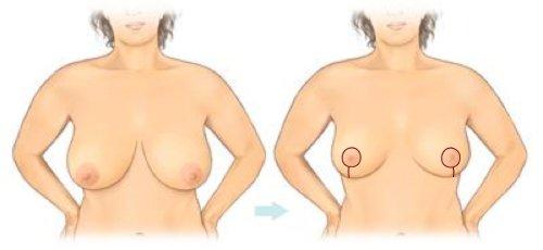 Før og efter et stort brystløft.