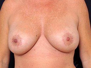 Lille brystløft ogEfter brystforstørrende operation