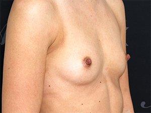 Før brystforstørrelse
