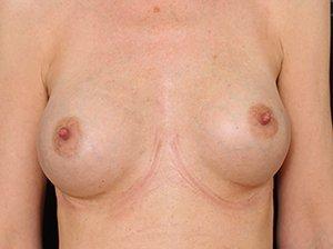 Brystforstørrende operation