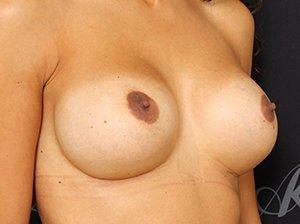 Skift af brystimplantater