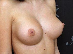 BFO med implantater