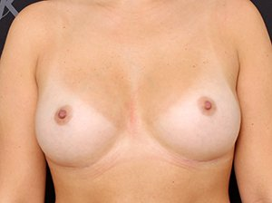 Brystforstørrende operation med implantater