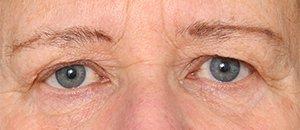 Før øvre øjenlågsoperation