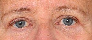 Øvre øjenlåg