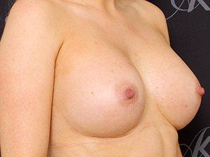 Brystforstørrende operation med Mentor cohesive 2 brystimplantat