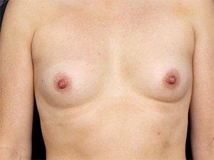 Før brystforstørrende operation