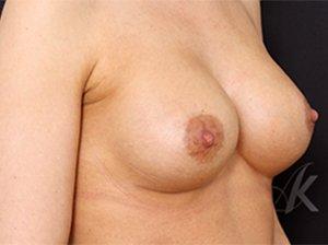Brystforstørrende operation med Mentor anatomisk brystimplantat